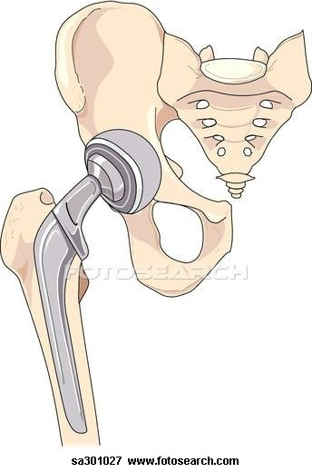 Nice guidelines total hip replacement occupational therapy