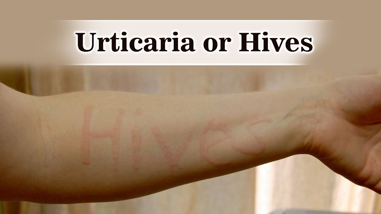 What are hives and how to get rid of them
