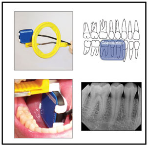 Dental x ray positioning guide